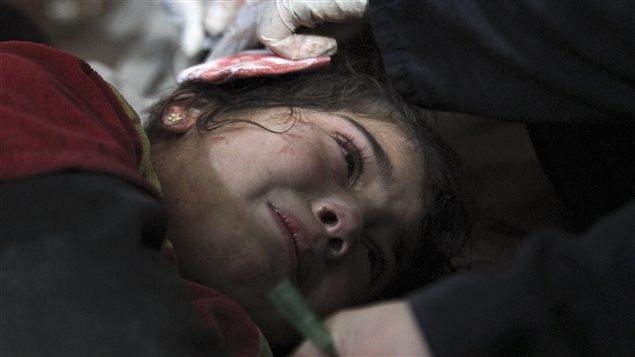 Guerre en Syrie : 25 000 blessés par mois, selon l'OMS