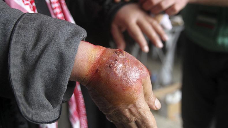 Syrie : alerte à la maladie dévoreuse de chair